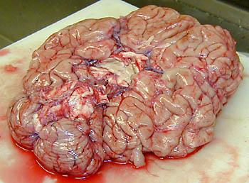 Cadaver Brain