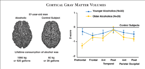 Gray Matter Volumes