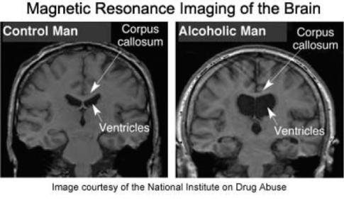 MRI Alcoholic Brain
